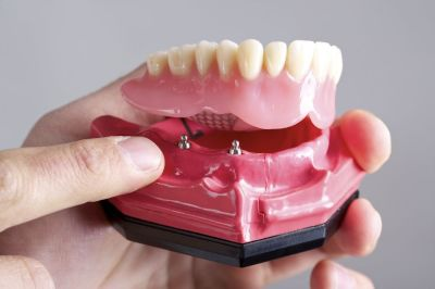 Important Facts You Should Know About the All on Four Dental Implants