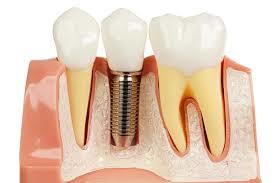 The Truth About Dental Implants